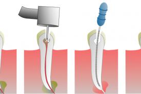 zuby, gutaperčové čepy